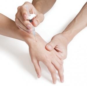 نتیجه تصویری برای تزریق استروئید دست